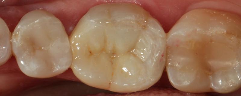 Dentisterie sans métal - Onlay Ceramique apres