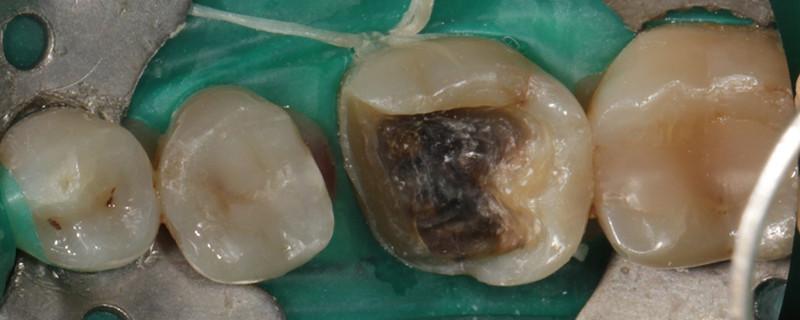 Dentisterie sans métal - Onlay Ceramique Avant